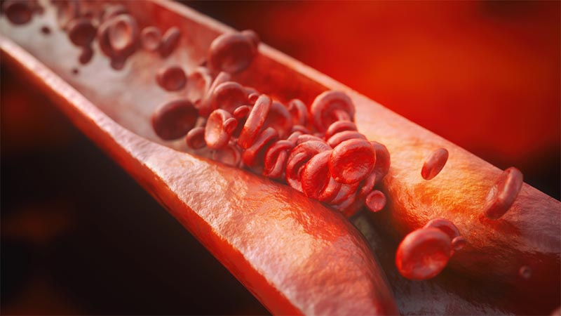 Closeup of a atherosclerosis with high details - 3D rendering
